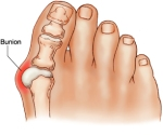 bunion anatomy