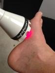 Litecure Lightforce Pro Laser