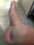 Medial view of right foot injury