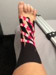 Rock Tape for edema and bruising